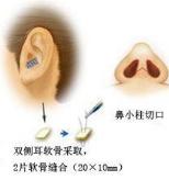 耳软骨隆鼻示意图
