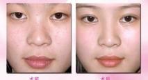玻尿酸增高鼻梁