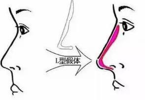 假体增高鼻梁