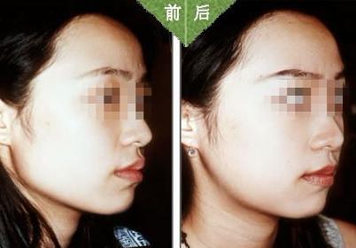 下颌角手术