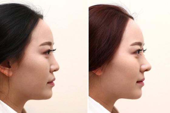 肋软骨隆鼻效果对比