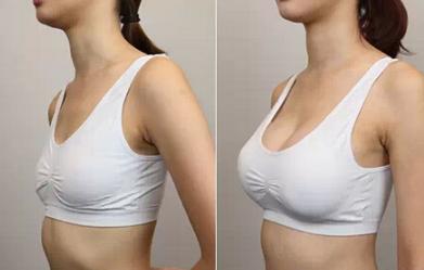 假体隆胸对比