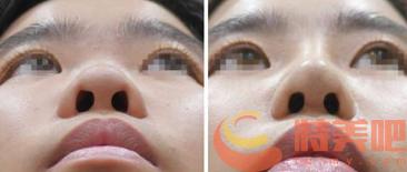 玻尿酸隆鼻对比