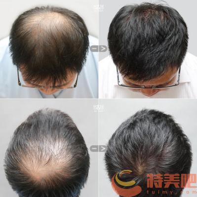 头顶稀疏加密植发