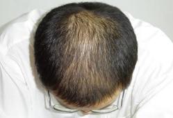 头顶稀疏明显怎么办?看下头顶稀疏加密植发的效果!