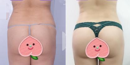 自体脂肪丰臀效果好吗?