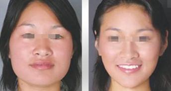 磨骨瘦脸需要注意什么?有没有风险