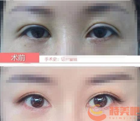 双眼皮修复对比案例