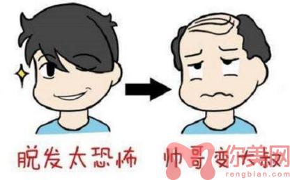 脱发前后对比图
