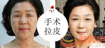 面部拉皮手术