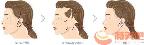 面部拉皮过程