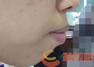 轻微骨性的下巴后缩