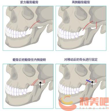 颧骨缩小手术