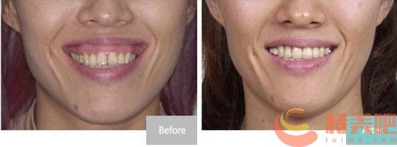 正颌手术效果