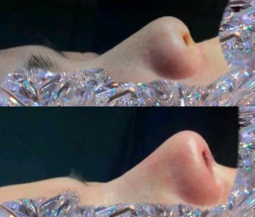 耳软骨隆鼻效果好吗?
