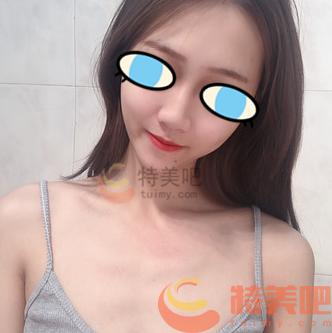 娜高假体隆胸