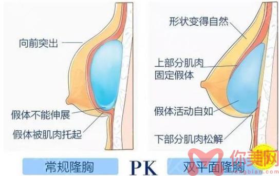 双平面隆胸技术