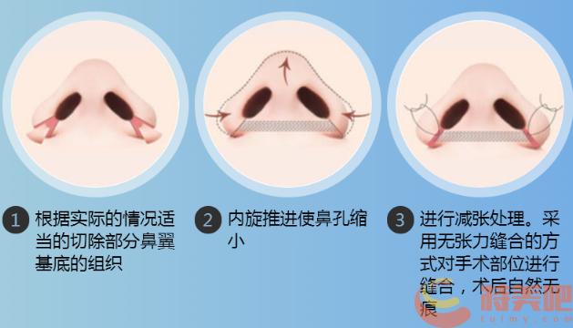 鼻翼缩小示意图