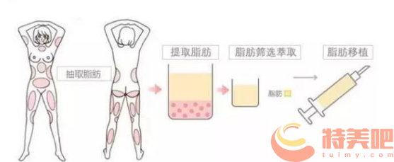 脂肪隆胸过程示意图
