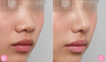 假体隆鼻一般要多少钱?