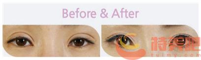 武汉双眼皮修复