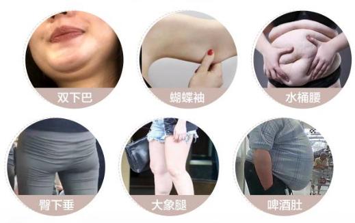 济南艺星杨季涛医生做吸脂好吗?