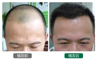为什么有的人植发花了好几万,有的人植发不到一万块?