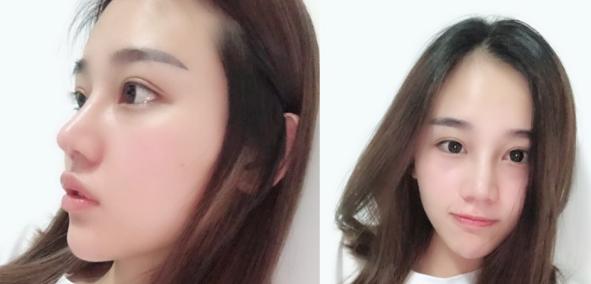 上海做隆鼻修复戴传昌、顾清和李健谁更好?
