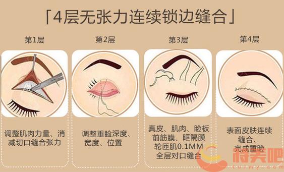 北京画美任召磊医生双眼皮
