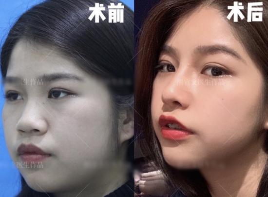 长沙美之峰丁翔和艺星秦晓东做鼻子哪个更好?