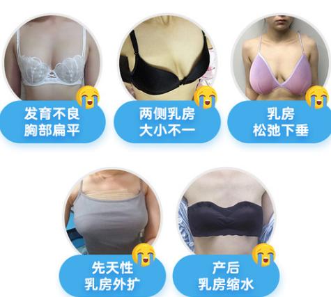 广州隆胸哪家整形医院好?一般价格要多少?