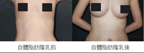 自体脂肪隆胸