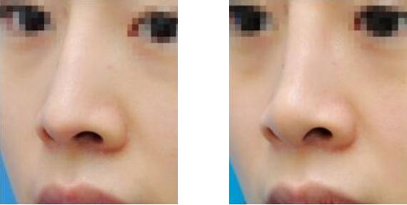 肉毒素缩鼻头