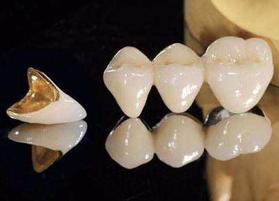 合金烤瓷牙