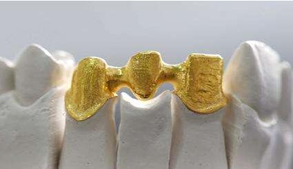 贵金属烤瓷牙