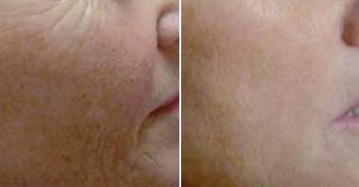 玻尿酸去面部细纹