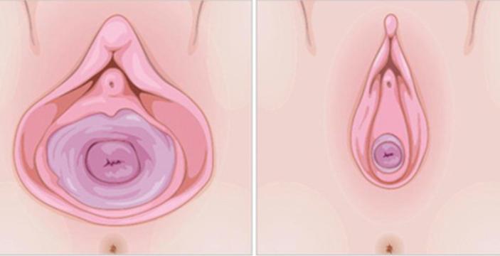 激光紧缩阴道