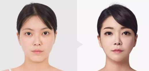 磨骨真的会造成面部皮肤下垂吗?