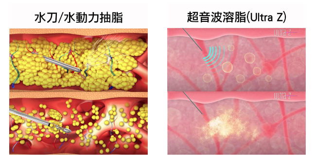 水动力吸脂与超音波溶脂有哪些区别呢?