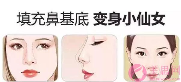 上海鼻基底填充怎么选择医院