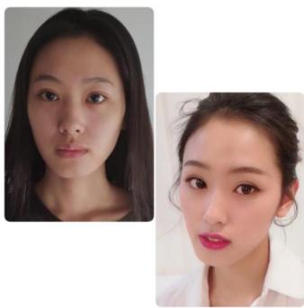 L型硅胶隆鼻失败鼻尖穿孔的表现有哪些?
