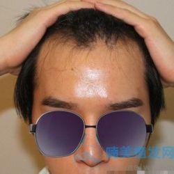 广州新生植发医院发际线种植真实前后对比图