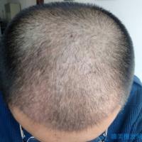 南宁贞韩植发稀少加密种植案例分享