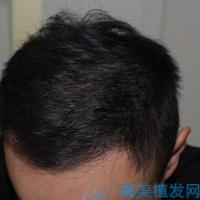 上海碧莲盛发际线种植,让我自信了