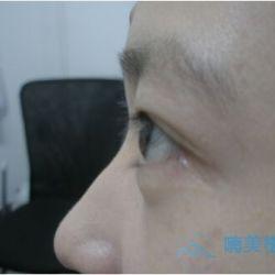 成都丝缘种植睫毛术后效果分享