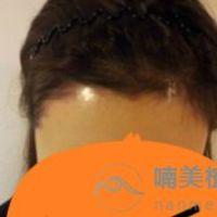 北京南加发际线种植案例分享