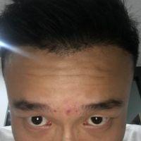 南京艺星发际线种植比以前帅多了