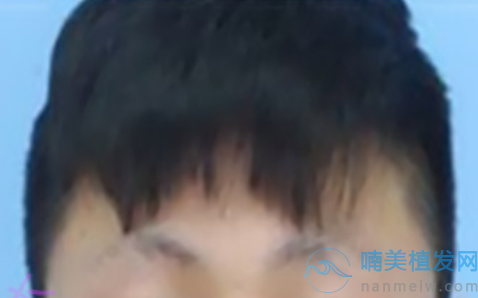 眉毛种植前