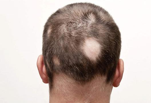 瘢痕性脱发是否能做植发手术?