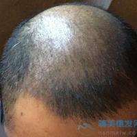 遵义韩美秃顶植发案例分享